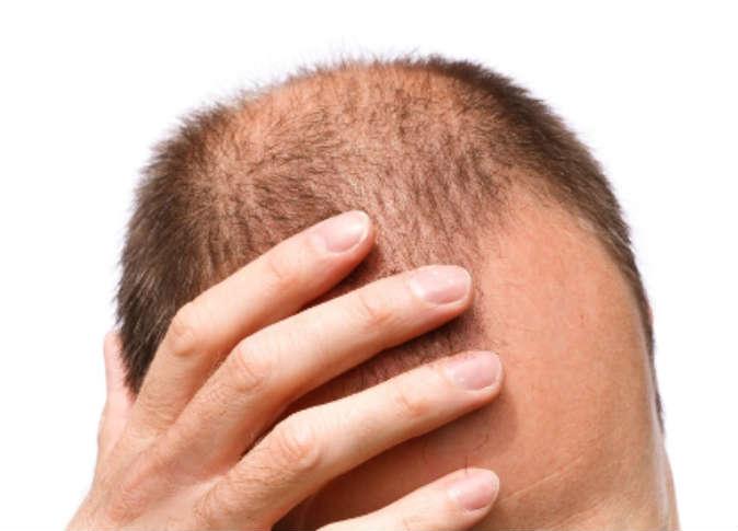 صورة علاج تساقط الشعر للرجال , حل ظاهرة تساقط الشعر لدي الرجال