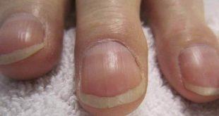 امراض الاظافر , تعرف على اهم الامراض التى تصيب الاظافر