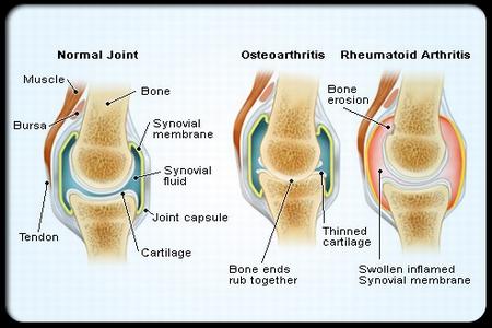 صورة علاج الروماتيزم , طريقة علاج الروماتيزم
