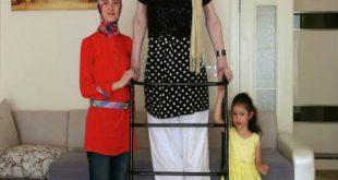 اطول امراة في العالم , صور اطول امراه فى العالم