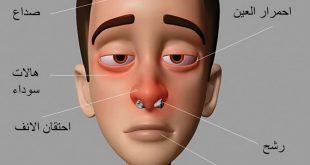صور اعرض حساسية الانف , علاج حساسيه الانف