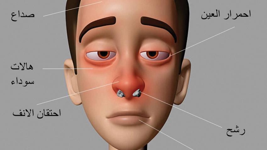 صورة اعرض حساسية الانف , علاج حساسيه الانف