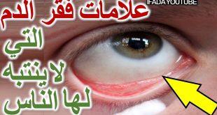 صوره اعراض فقر الدم , اسباب فقر الدم