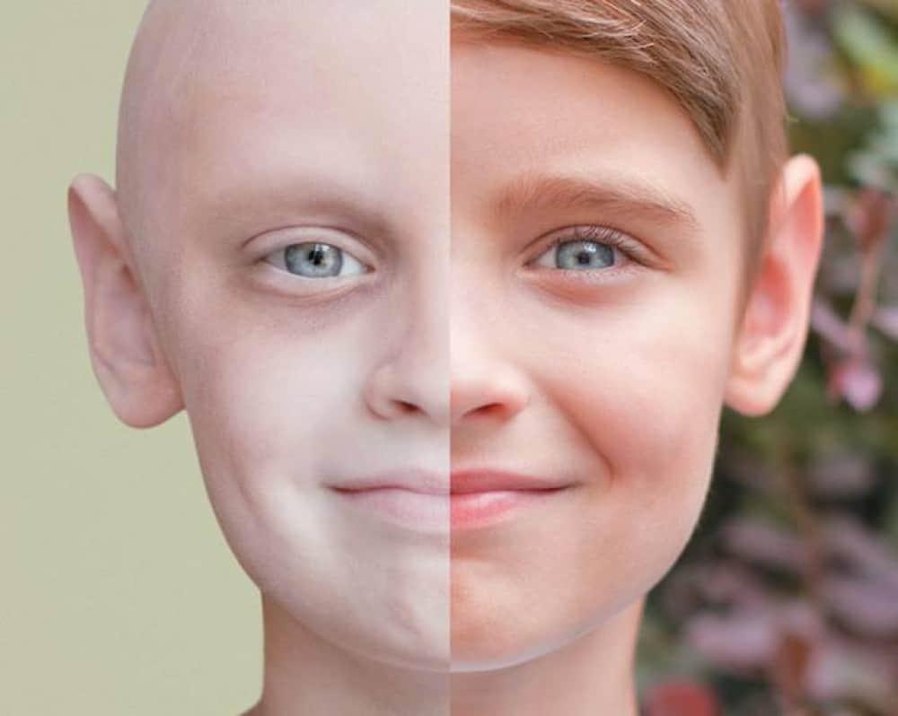 بالصور علاج مرض السرطان , العلاج الطبيعي للسرطان 2045