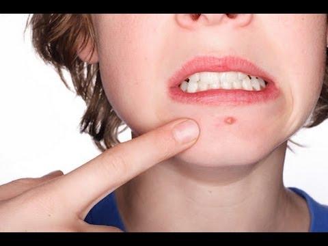 صورة ازالة حبوب الوجه , وصفات التخلص من حبوب الوجه