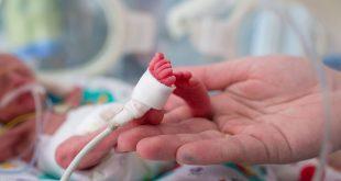 صوره اسباب الولادة المبكرة , تجنب الاخطاء لعدم ولاده مبكره