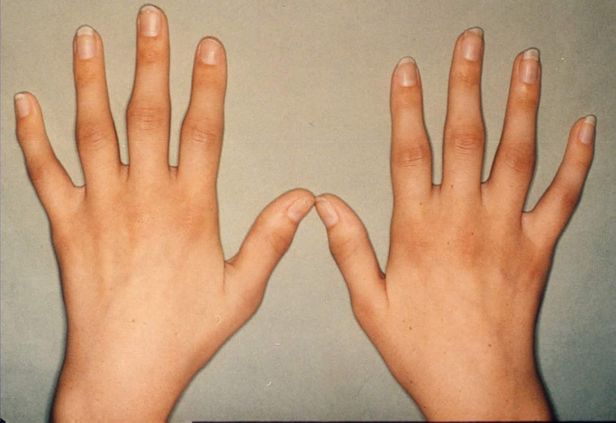 صورة اعراض الروماتيزم , كيف تميز مرض الروماتيزم