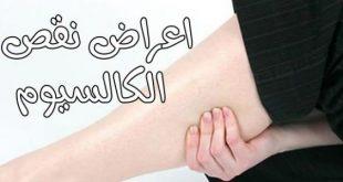 صوره اعراض نقص الكالسيوم , اسباب هشاشة العظام ونقص الكالسيوم