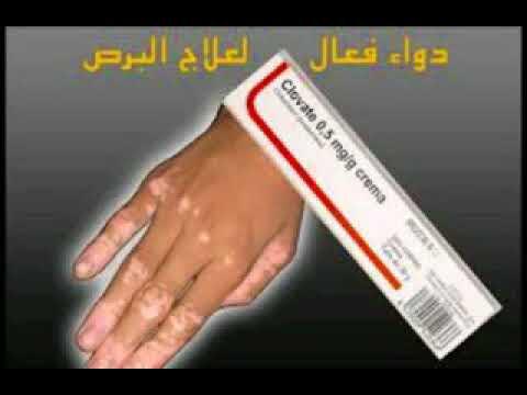صورة علاج البرص , كيف تعالج البرص