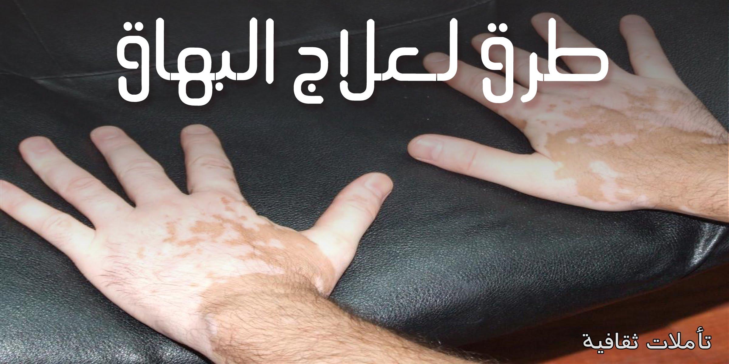 بالصور علاج البرص , كيف تعالج البرص 4927 2