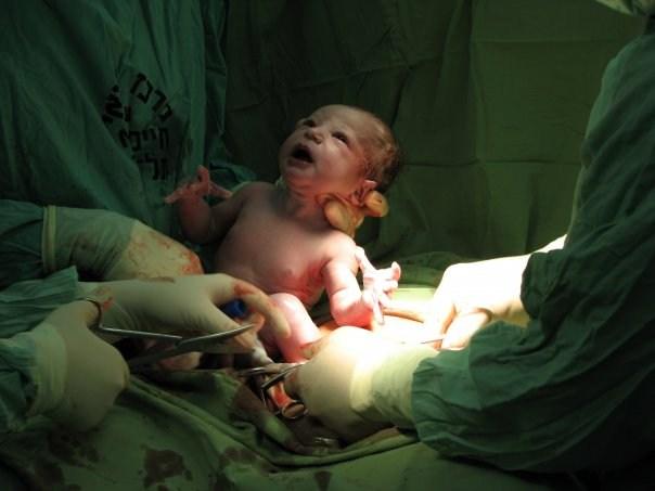 بالصور صور للولاده , شاهد غرف العمليات اثناء الولادة 5122 3