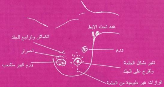 بالصور اعراض سرطان الثدي , معلومات عن مرض سرطان الثدى 1763 2
