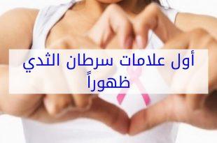 صوره اعراض سرطان الثدي , معلومات عن مرض سرطان الثدى