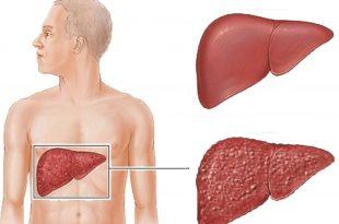 بالصور مرض الكبد الوبائي , امراض العصر و اعراضها 271 3 310x205