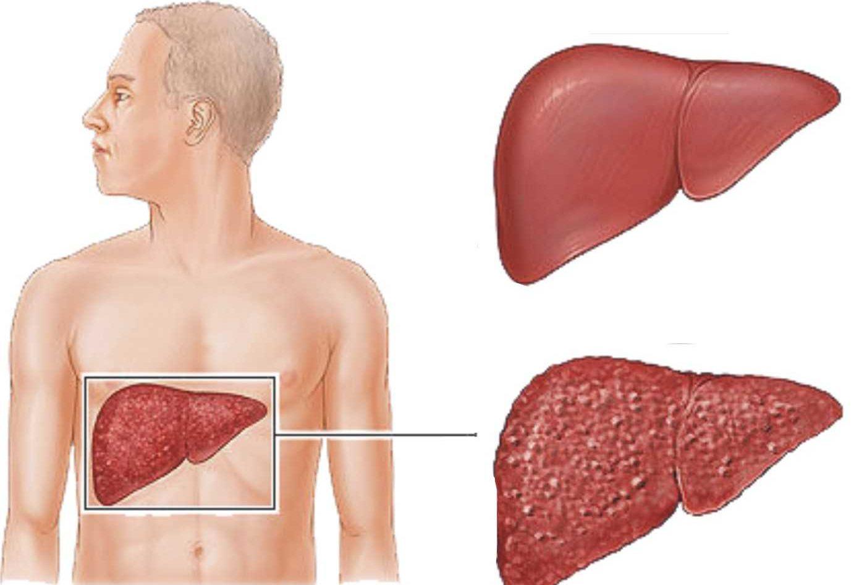 بالصور مرض الكبد الوبائي , امراض العصر و اعراضها 271