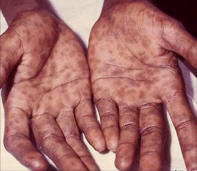 بالصور مرض الزهرى , اغرب الامراض واعراضه والشفاء منه 372 1