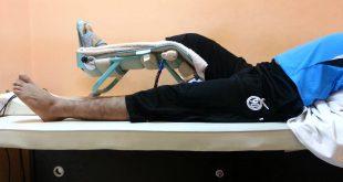 صور عملية الرباط الصليبي , العلاج من الرباط الصليبي وقله حدوثه