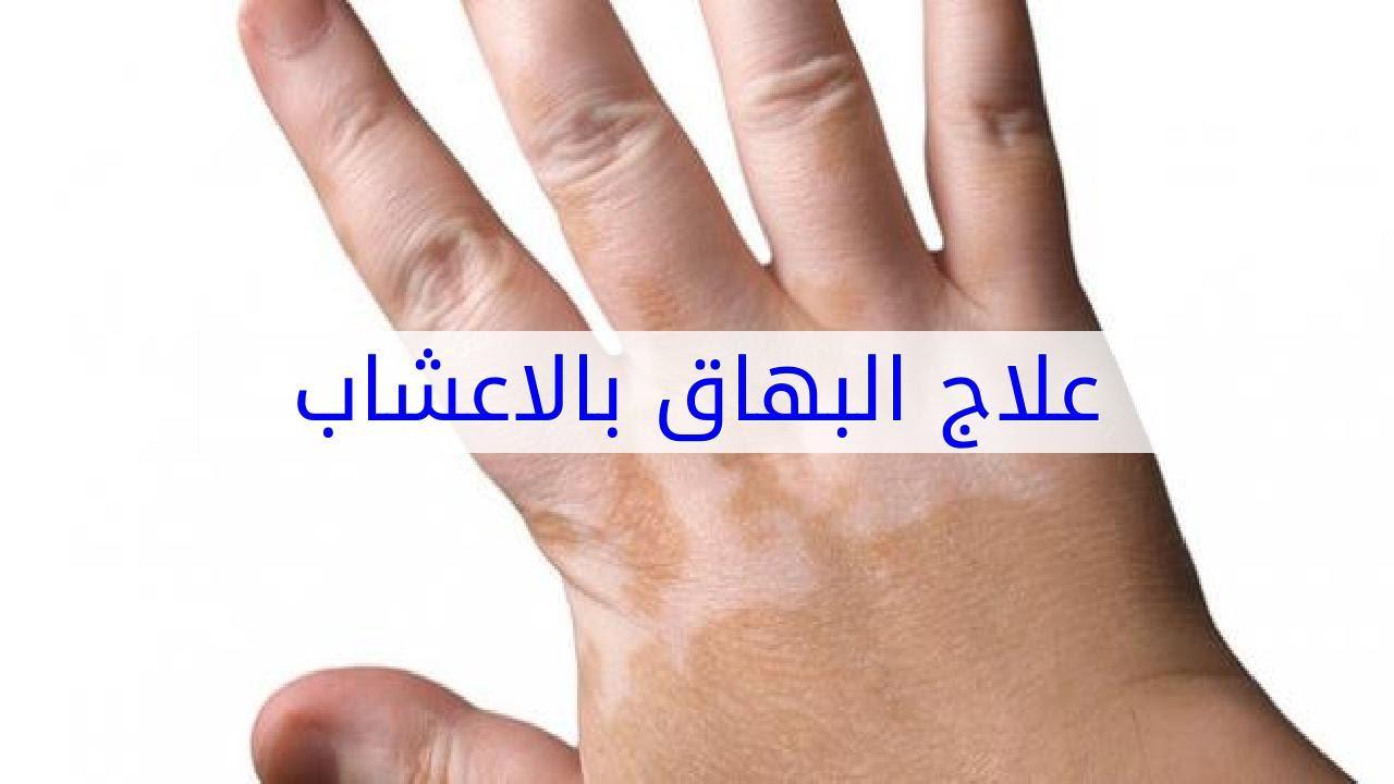 بالصور علاج البهاق , اعراض البهاق والعلاج فورا 409 2