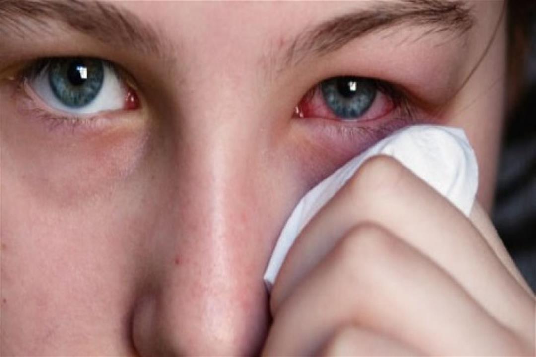 صوره علاج الرمد , امراض العيون وعلاجها ونوعيتها
