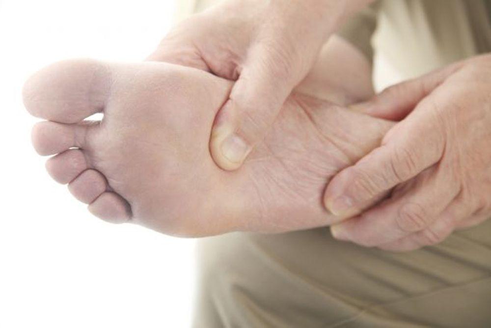 صوره علاج مسمار القدم , العلاج الاسرع لمسار القدم