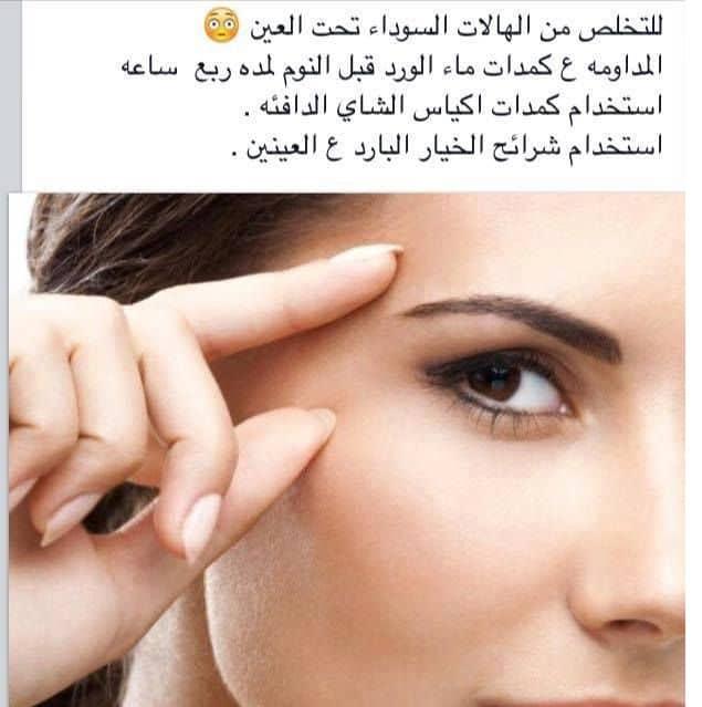بالصور علاج الهالات السوداء , اسباب ظهور السواد تحت العين وعلاجة 830 1