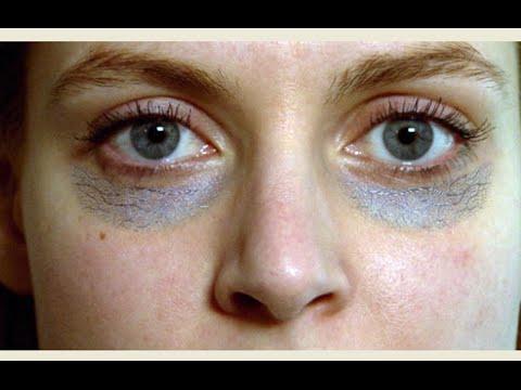 بالصور علاج الهالات السوداء , اسباب ظهور السواد تحت العين وعلاجة 830 2