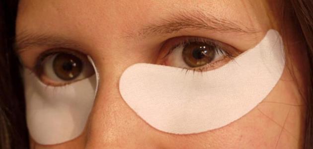 بالصور علاج الهالات السوداء , اسباب ظهور السواد تحت العين وعلاجة 830