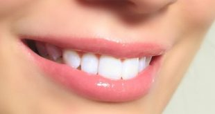 بالصور كيفية تبييض الاسنان , تعرفى على طرق تبييض الاسنان بسرعة 3401 3 310x165