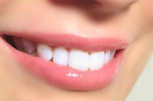 صوره كيفية تبييض الاسنان , تعرفى على طرق تبييض الاسنان بسرعة