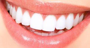 صور تفسير حلم غسل الاسنان , معرفة تفسير حلم غسل الاسنان