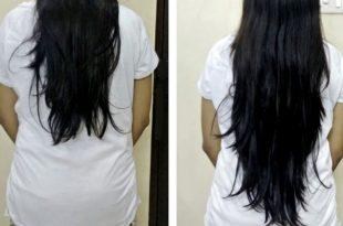 صورة فيتامين لتطويل الشعر , اجمل فيتامين لتطويل الشعر طريقه بيتي