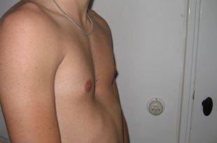 صورة علاج تقعر القفص الصدري , تعرف على علاج تقعر القفص الصدري