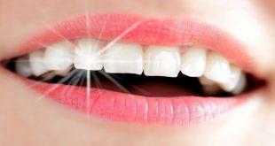 بالصور معلومات عن الاسنان , معلومات مفيداء عن الاسنان 11851 1 310x165