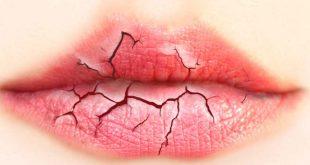 بالصور علاج جفاف الفم , احسن طريقه لعلاج جفاف الفم بالمشريب 11945 2 310x165