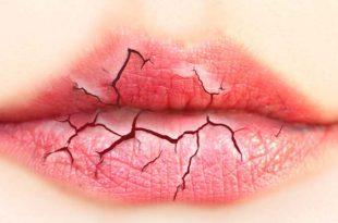 بالصور علاج جفاف الفم , احسن طريقه لعلاج جفاف الفم بالمشريب 11945 2 310x205
