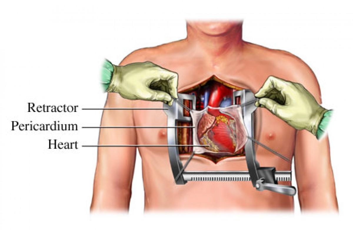 صور عملية قلب مفتوح , بعض المعلومات عن عملية القلب المفتوح