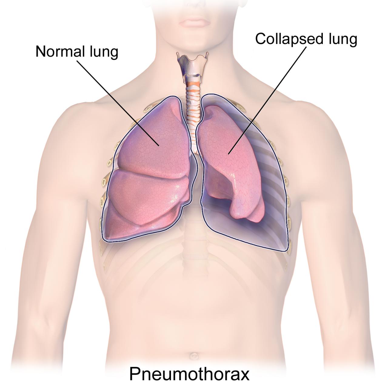 صور اعراض الشد العضلي في القفص الصدري , تعرف على اسباب تعب القفص الصدري