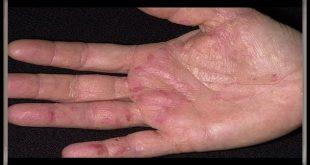 بالصور علاج اكزيما اليدين بالطب البديل , تعلم كيف تعلاج اكزيما اليدين بدون ان تاخذ الدواء 11886 2 310x165