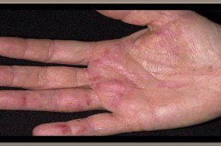 صورة علاج اكزيما اليدين بالطب البديل , تعلم كيف تعلاج اكزيما اليدين بدون ان تاخذ الدواء