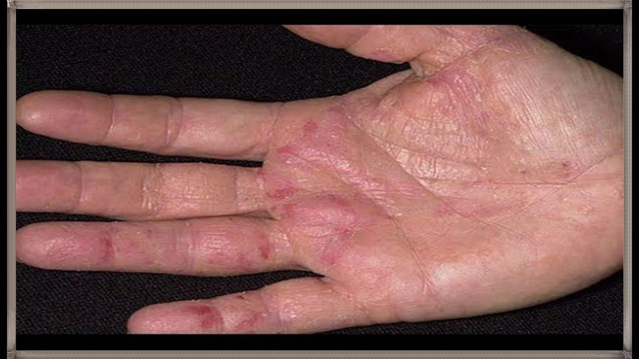 بالصور علاج اكزيما اليدين بالطب البديل , تعلم كيف تعلاج اكزيما اليدين بدون ان تاخذ الدواء 11886