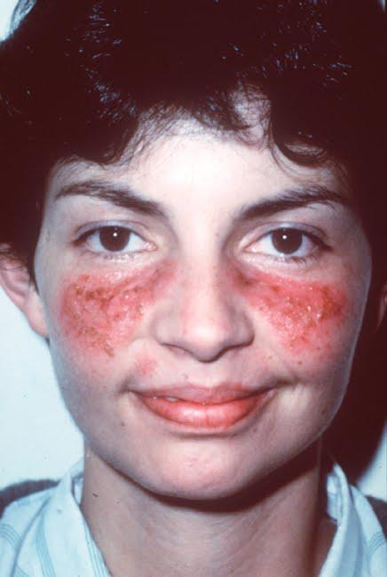 صورة مرض الذئبة الحمراء , مرض الذئبه الحماميه