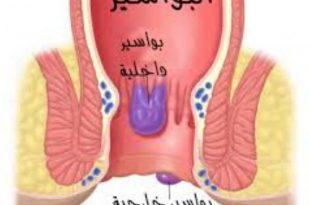 صورة اسباب البواسير , اسباب مرض البواسير